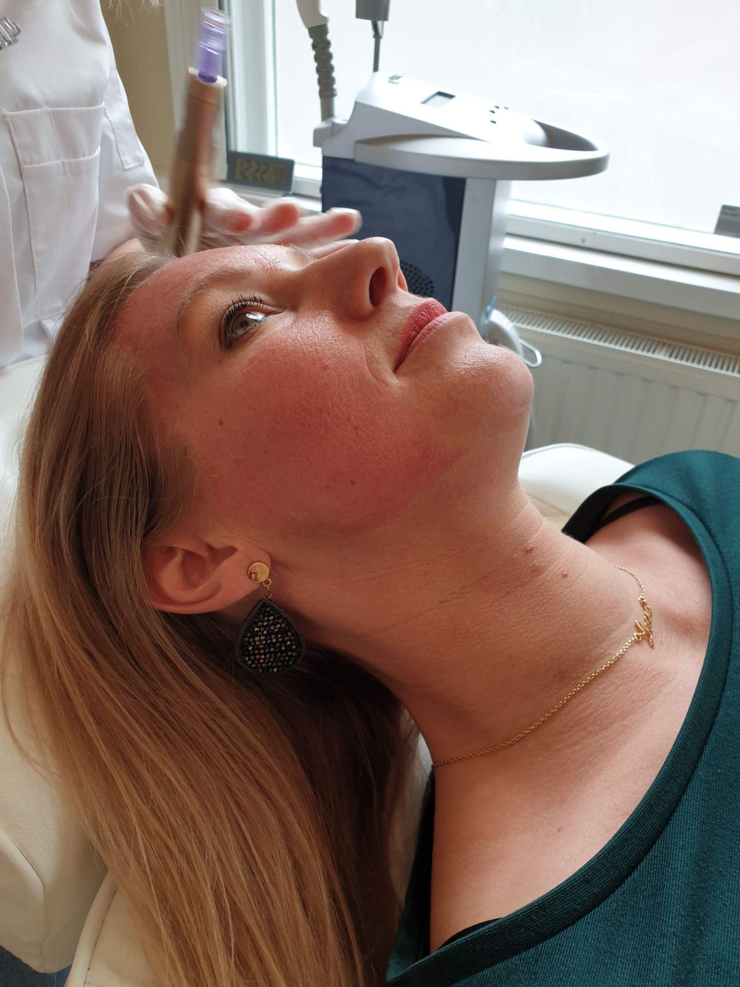 een kant van mijn gezicht direct na de behandeling